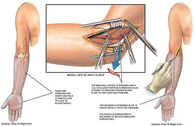 Decreased Circulation to the Right Arm and Hand; Brachial Artery Repair and Fasciotomy