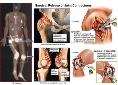 Arthritic Hip and Knee Replacements