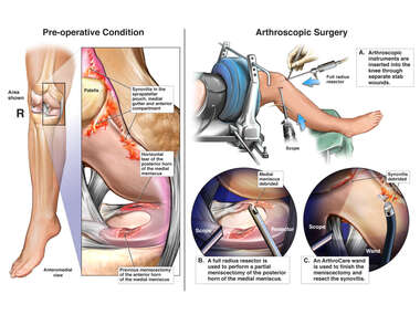 Right Knee Injury and Arthroscopic Surgery