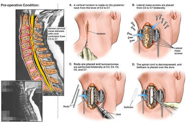Cervical Spine Injuries with Surgical Decompression and Fusion Surgery