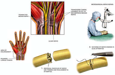 Median Nerve Repair