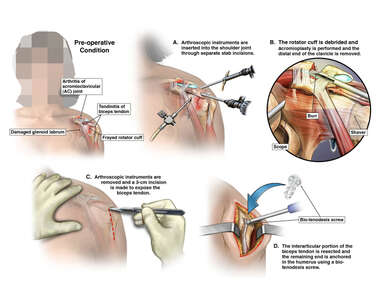 Left Shoulder Injuries with Arthroscopic and Open Repairs
