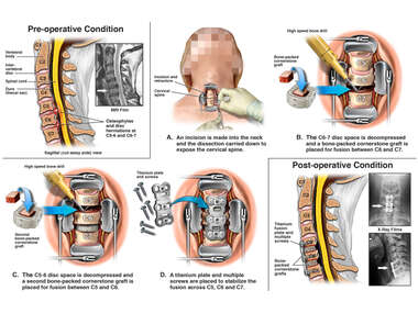 Cervical Spine Injuries with Two-Level Discectomy and Fusion with Instrumentation