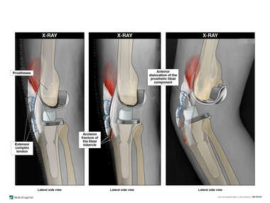 Destabilization of the Left Knee with Resulting Dislocation