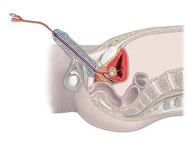 Placement of Foley for the Treatment of Perforation in Bladder Wall