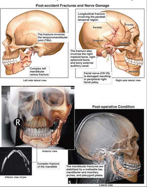 Post-accident Head Injuries and Partial Facial Paralysis