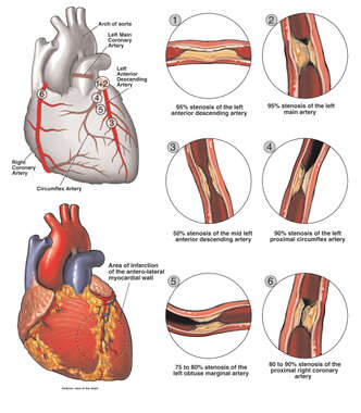 Heart - Coronary Artery Disease