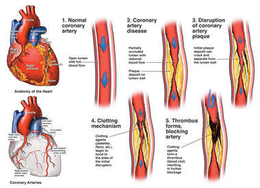Progression of Coronary Artery Blockage