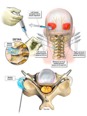Cervical Medial Branch Block
