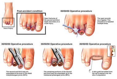 Crush Injury of Right Foot with Progression of Surgical Repairs
