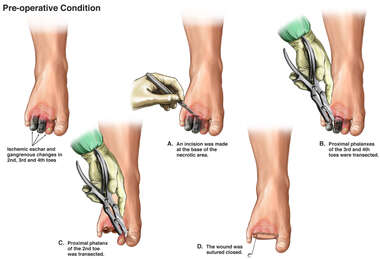 Amputation of Damaged Toes