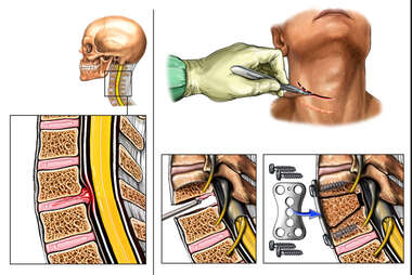 C4-5 Anterior Cervical Discectomy and Fusion