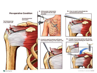 Arthroscopic Rotator Cuff Repair Surgery