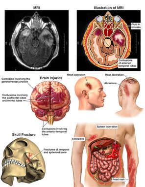 Injuries ot the Head, Brain, Torso and Spleen