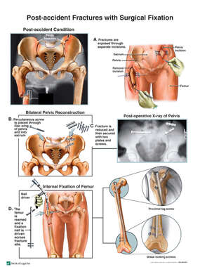 Femur and Hip Fracture Fixation