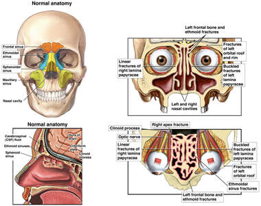 Sinuses and Skull Fractures