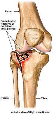 Comminuted Fracture of the Tibial Plateau