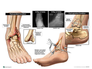 Ankle Fractures with Surgical Fixation