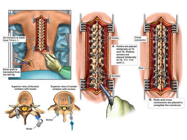 Posterior Spinal Fusion T4-L1