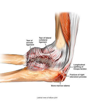 Fractured Olecranon ( Elbow) and Ligament Damage