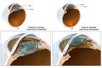 Posterior and Anterior Chamber Intra-ocular Prostheses