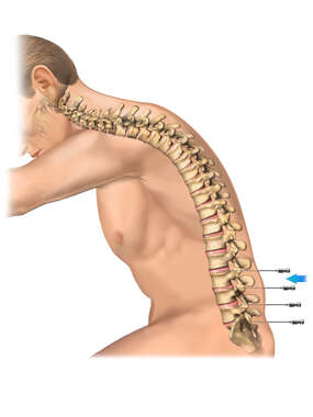 Patient Position for a Lumbar Discogram