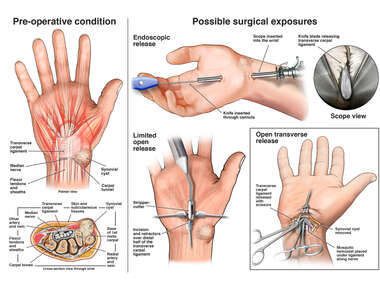 Release of Carpal Tunnel and Excision of Synovial Cyst
