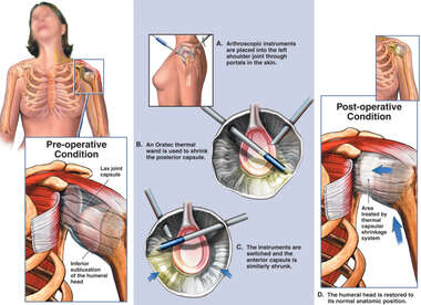 Shoulder Joint Capsule Laxity (Looseness) with Arthroscopic Surgery