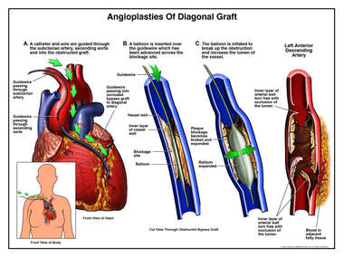 Angioplasties of Diagonal Graft