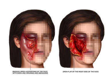 Girls Face with Post-accident Facial Lacerations