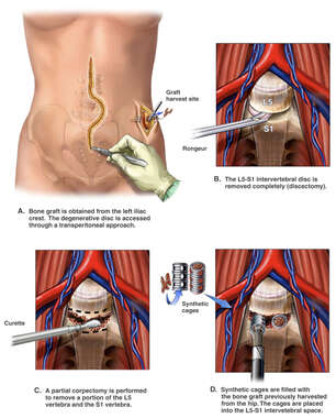 Anterior Lumbar Corpectomy and Discectomy