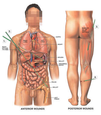 Male Figure, Front and Back with Multiple Gunshot Wounds
