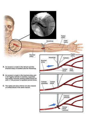 Thromboembolectomy of the Left Arm
