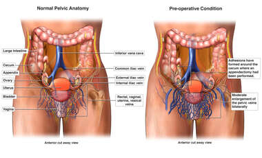 Normal Female Pelvic Vein Anatomy vs. Pre-operative Condition