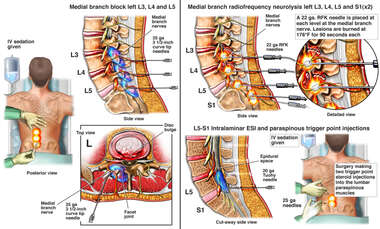 Nerve Branch Block and Neurolysis Procedures