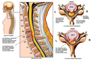 C5-6 and C6-7 Disc Herniations with Spinal Cord Impingement