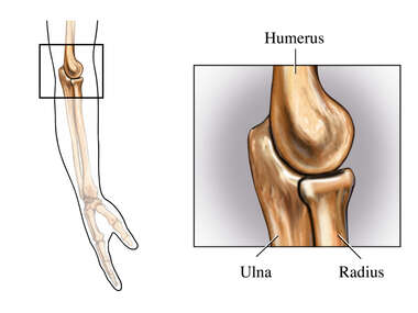 The Elbow Joint: Lateral (Side) View
