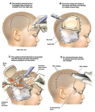 Brain Surgery Following Severe Head Trauma in a Child