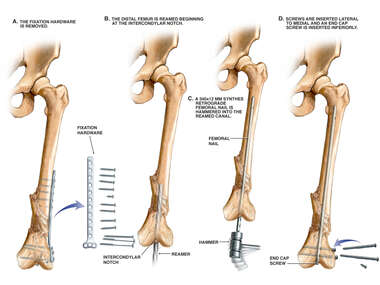 Removal of Fixation Hardware and Placement of Intramedullary Rod