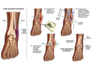 Left Ankle Lateral Malleolus Fracture with Surgical Fixation