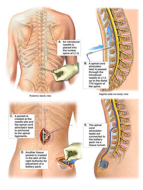 Spinal Cord Stimulator Implantation