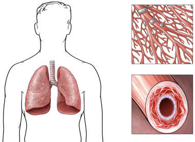 Asthma in the Lungs