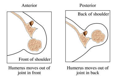 Dislocations of the Shoulder Joint