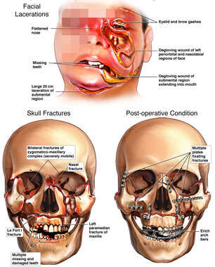 Multiple Facial Injuries with Initial Surgical Fixation
