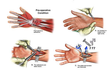 Painful Right Wrist Hardware and Surrounding Adhesions with Removal of Hardware and Tenolysis