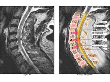 Multilevel Cervical Disc Injuries