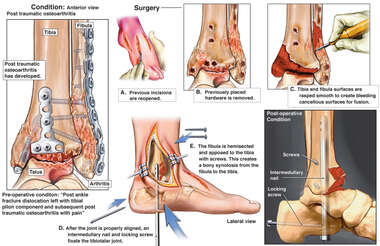 Post-traumatic Arthritis of the Ankle with Surgical Fusion