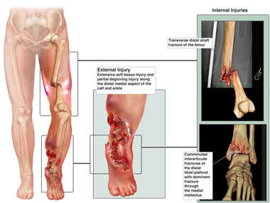 Traumatic Leg Injuries