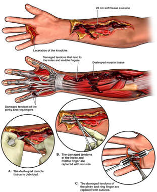 Left Arm and Hand Injuries with Surgical Repairs