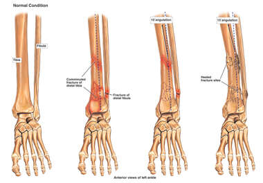 Progression of Ankle Fracture